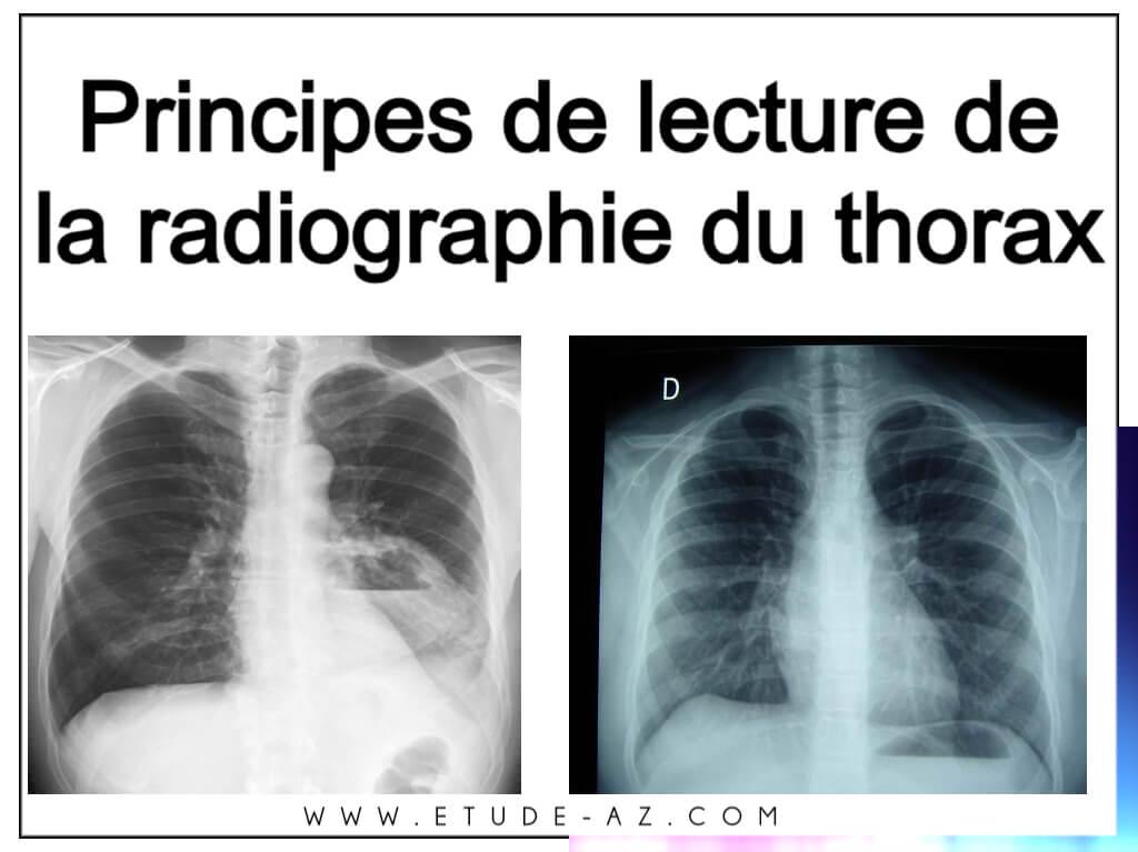 Principes de lecture de la radiographie du thorax .PDF