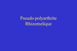Pseudo polyarthrite Rhizomelique .PDF
