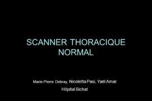 SCANNER THORACIQUE NORMAL .PDF