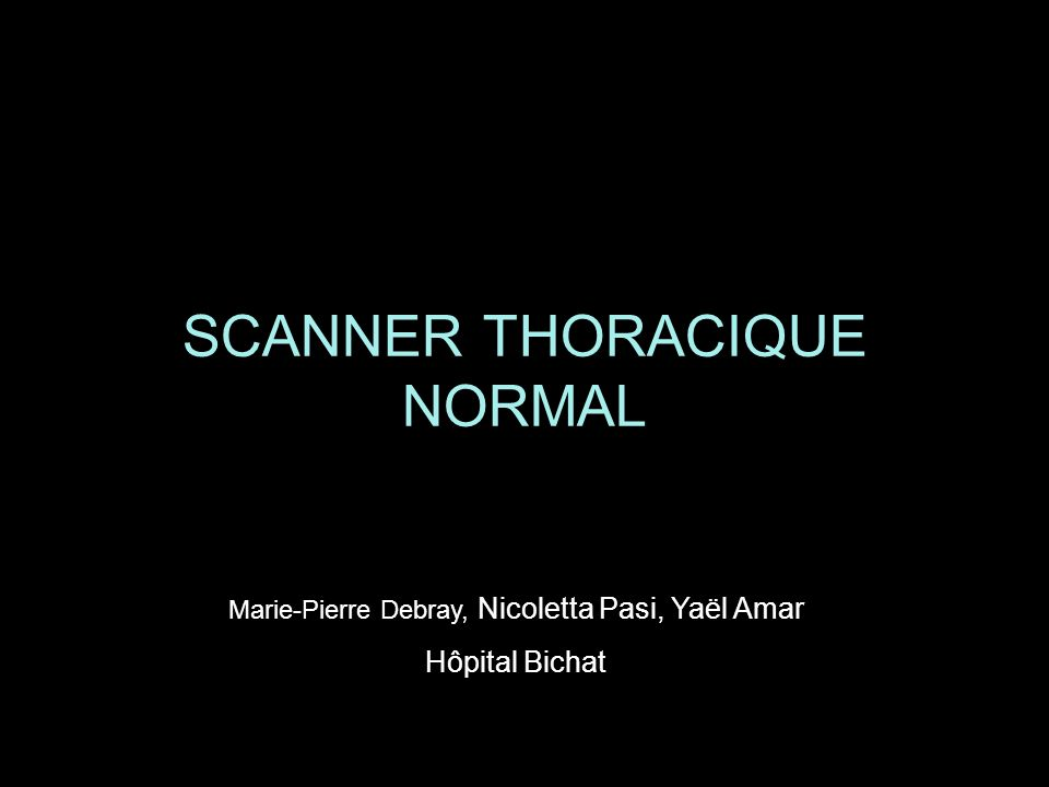 SCANNER THORACIQUE NORMAL .PDF