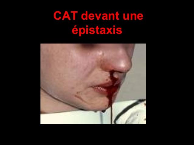 CAT devant une épistaxis .PDF
