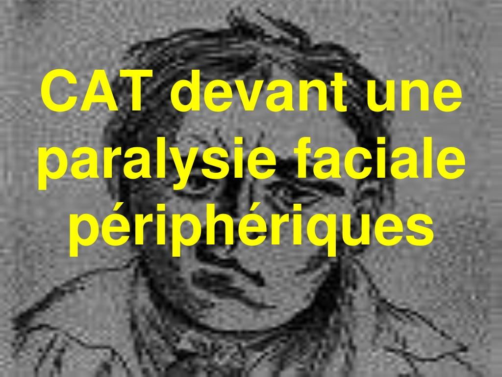 CAT devant une Paralysie faciale périphérique.PDF