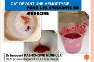 CAT devant une hémoptysie .PDF