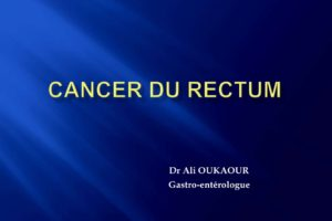 Cancer du rectum .PDF