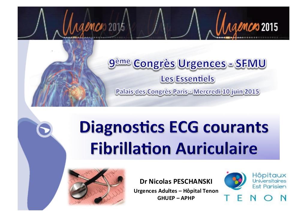 Diagnostics ECG courant fibrillation auriculaire .PDF