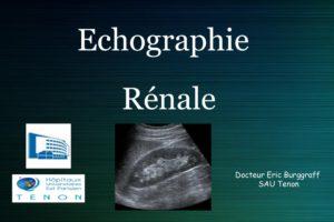 Echographie rénale .PDF