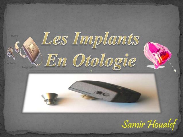 Implants en otologie .PDF