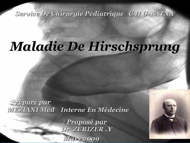 Maladie de hirschprung .PDF