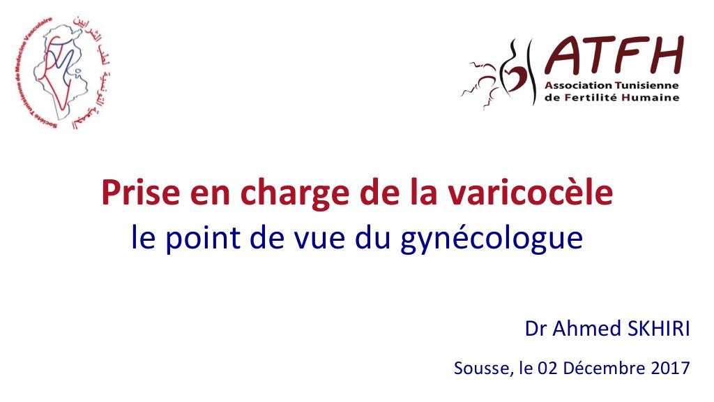 Prise en charge de la varicocèle .PDF