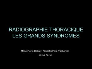 RADIOGRAPHIE THORACIQUE LES GRANDS SYNDROMES .PDF