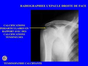 RADIOGRAPHIEE L'EPAULE DROITE DE FACE .PDF