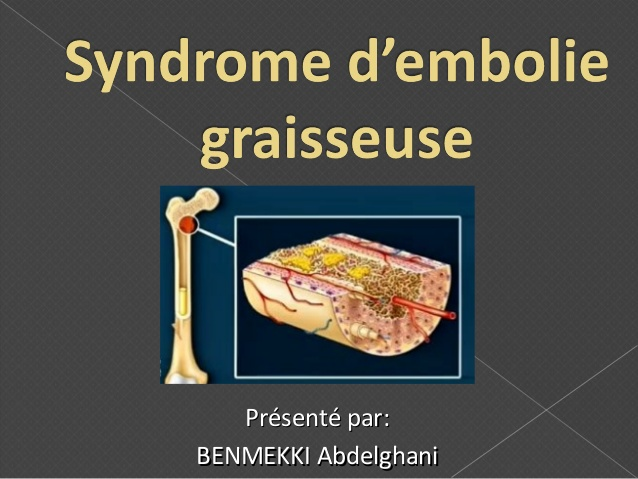 Syndrome d'embolie graisseuse .PDF