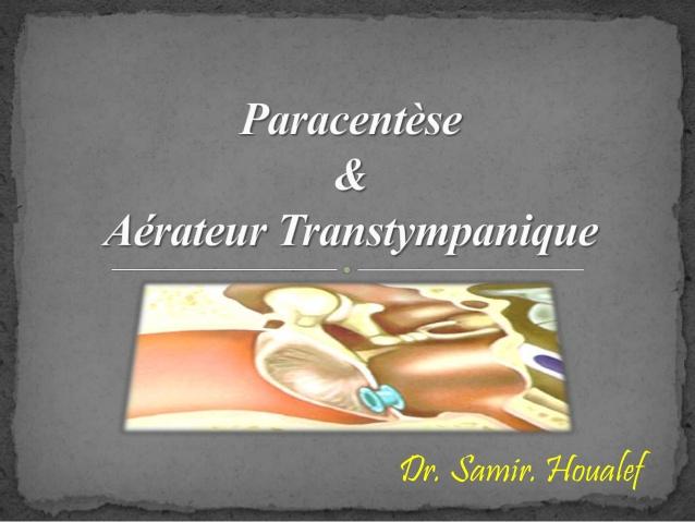 Paracentèse et aérateur transtympanique .PDF