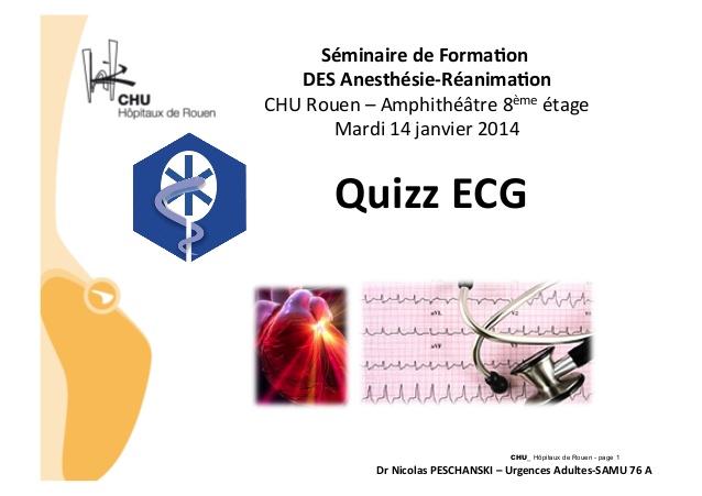Quizz ECG .QCM (PDF)