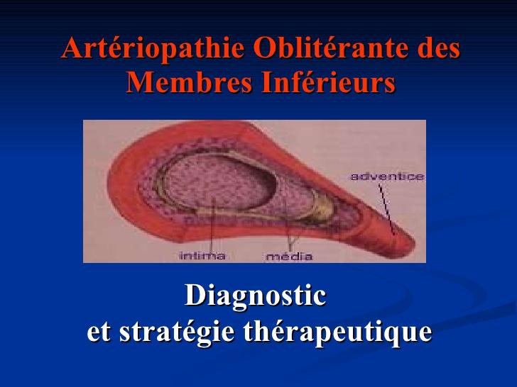 Artériopathie Oblitérante des Membres Inférieurs .PDF