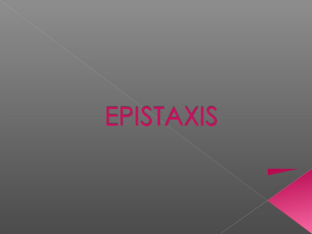 Epistaxis .PDF