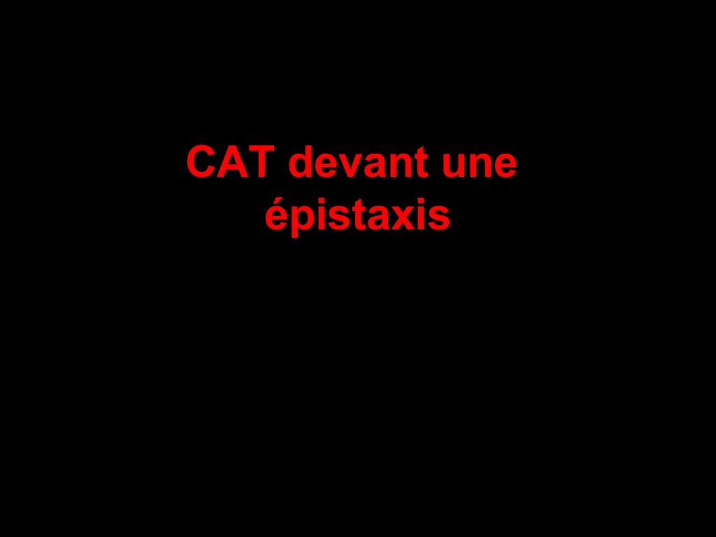 Que faire devant une epistaxis .PDF