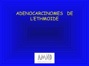 Adénocarcinome de l'ethmoïde .PDF