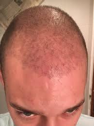 Comment se déroule la repousse après une greffe de cheveux?