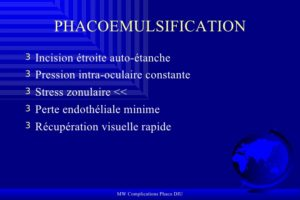 Complications Phacoémulsification .PDF