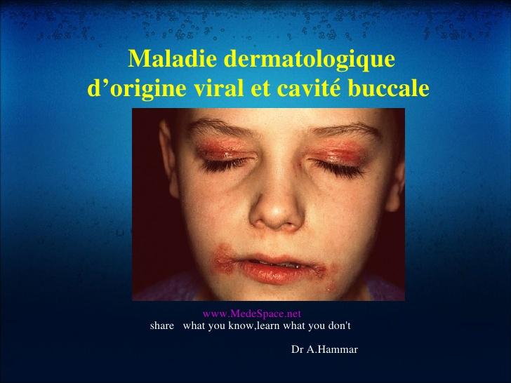 Maladie dermatologique d'origine viral et cavité buccale .PDF