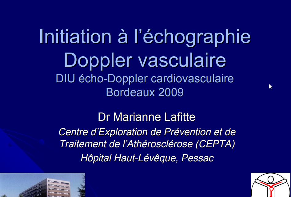 Echo doppler vasculaire .PDF