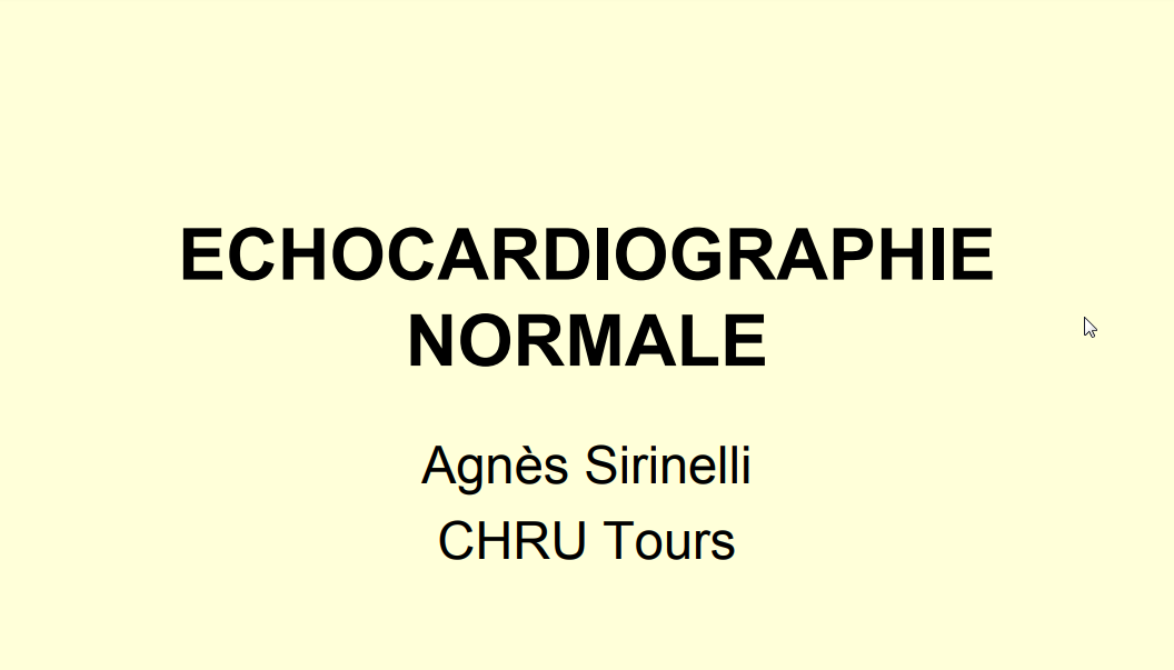 Echocardiographie normale