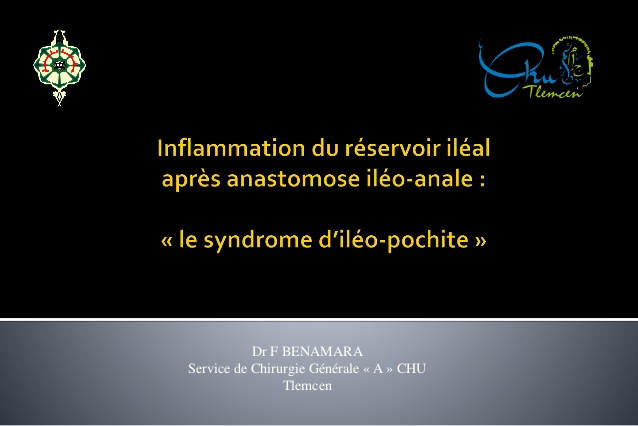 Le syndrome d'iléo pochite .PDF