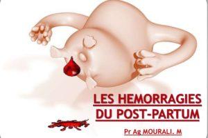 Les hemorragies du post partum .PDF
