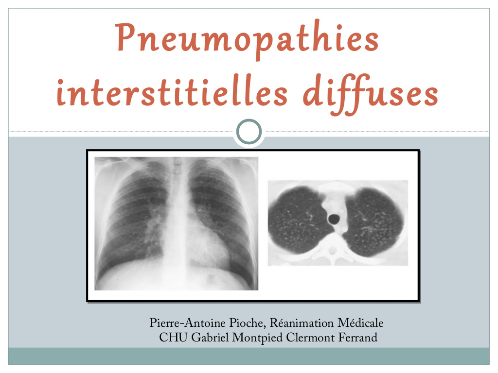 Pneumopathies Interstitielles Diffuses .PDF