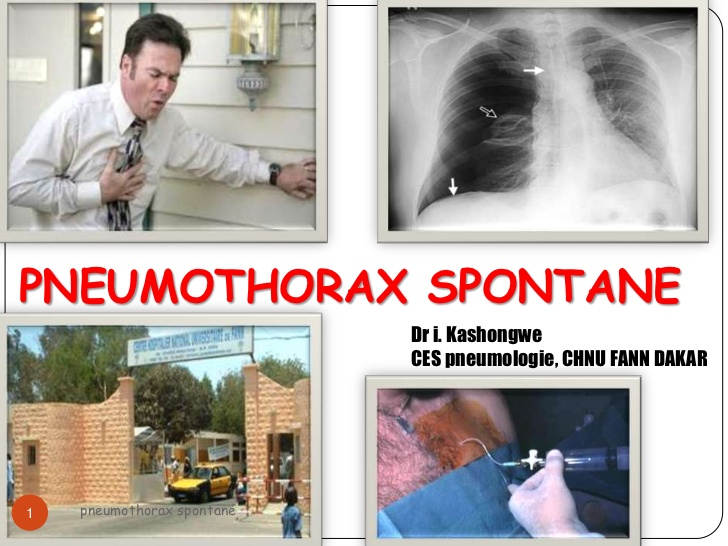 Pneumothorax spontané .PDF