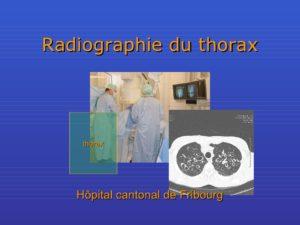 Radiographie du thorax .PDF