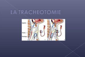Trachéotomie .PDF