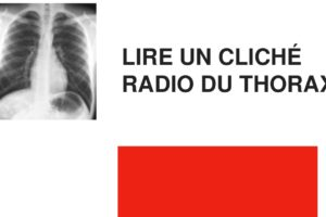 Lire un cliché radio du thorax .PDF