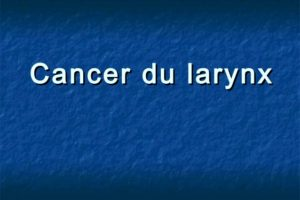Cancer du larynx .PDF