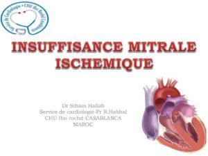 Insuffisance mitrale ischémique .PDF