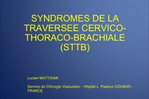 SYNDROMES DE LA TRAVERSEE CERVICO-THORACO-BRACHIALE (STCTB) .PDF