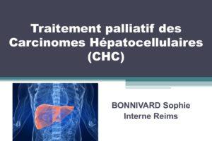 Traitement palliatif des Carcinomes Hépatocellulaires .PDF
