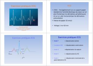 Exercices pratiques ECG .PDF
