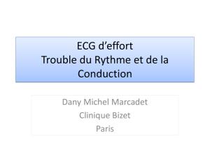 ECG d'effort Trouble du Rythme et de la Conduction .PDF