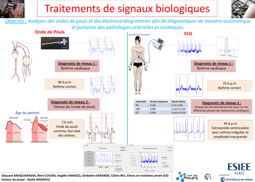 ECG Onde de Pouls .PDF