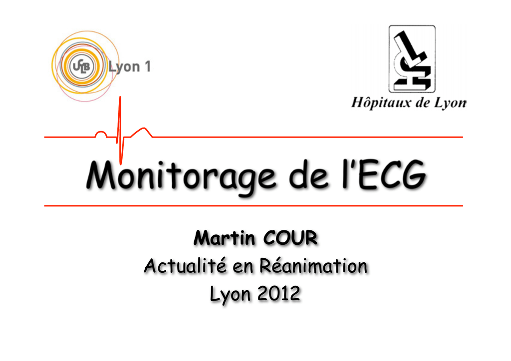 Monitorage de l'ECG .PDF