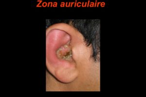 Zona auriculaire .PDF
