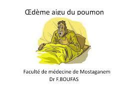 Œdème aigu du poumon .PDF