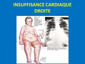 INSUFFISANCE CARDIAQUE DROITE .PDF
