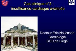 Docteur ErInsuffisance cardiaque avancée .PDFic Nellessen. Cardiologie. CHU de Liège.