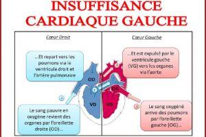 INSUFFISANCE CARDIAQUE GAUCHE .PDF