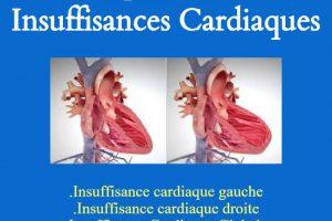 Comprendre les insuffisances cardiaques .