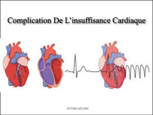Complication De L'insuffisance Cardiaque