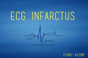 ECG infarctus